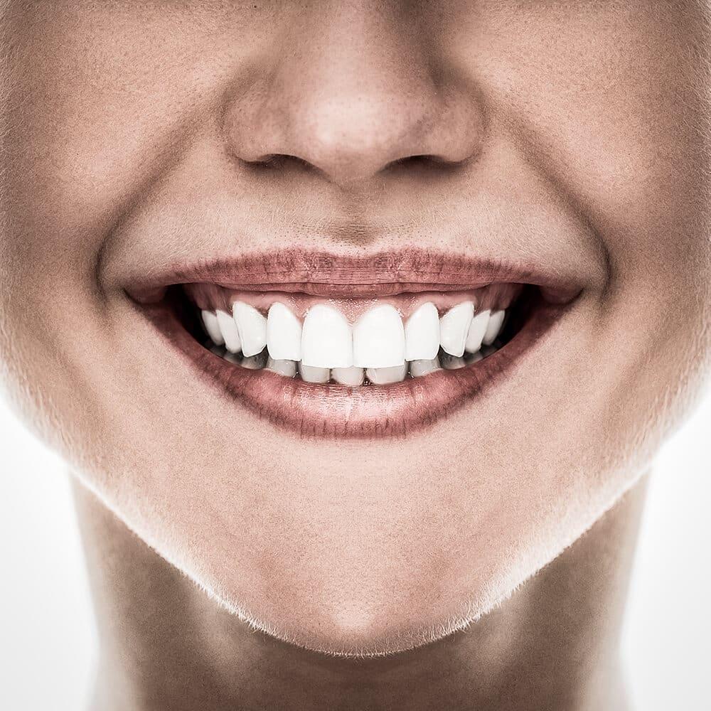 białe zęby ADP Clinic lublin