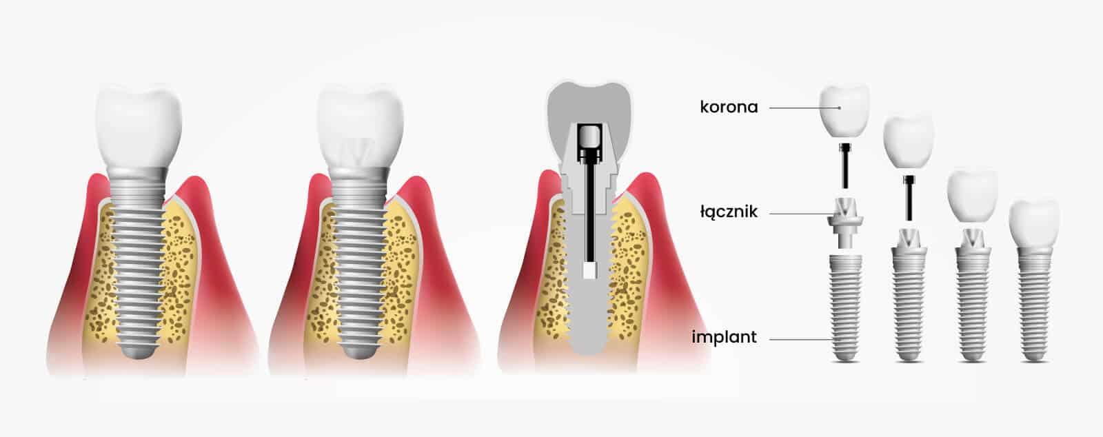 Implanty stomatologiczne ADP Clinic Lublin
