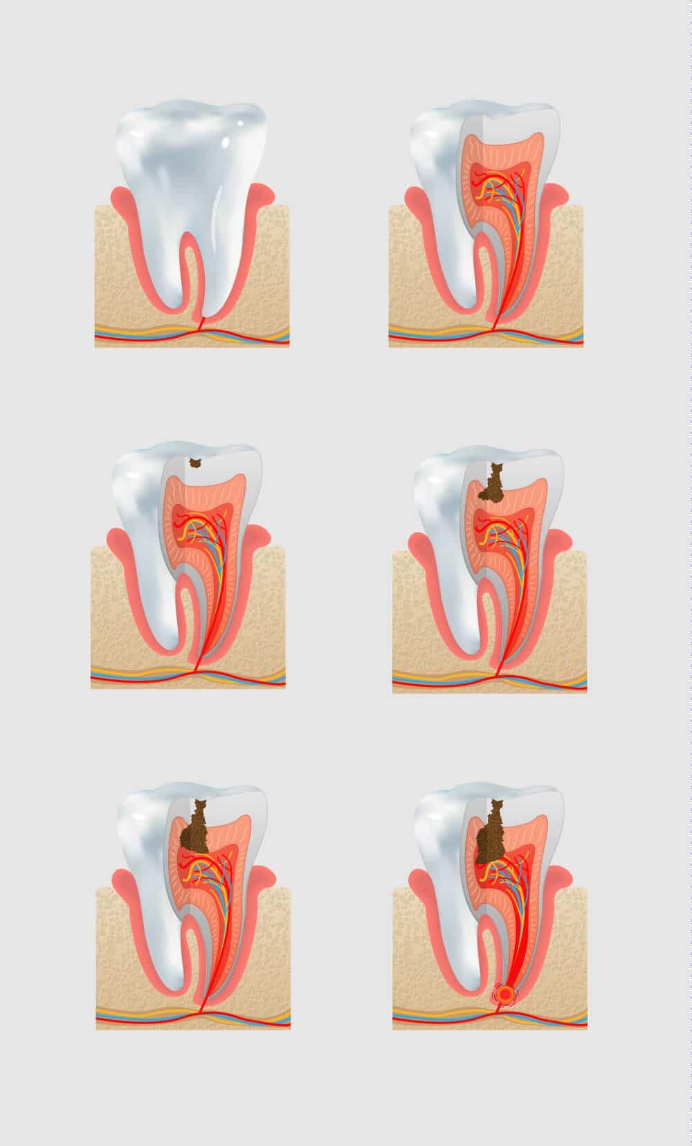 Endodoncja ADP Clinic Lublin